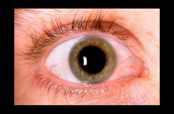 7c_glaucoma_0