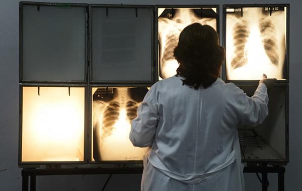tuberculosis2